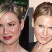 Renée Zellweger, Botox et chirurgie ? Son visage transformé suscite la rumeur