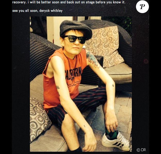 Deryck Whibley poste une photo de lui après sa sortie d'hôpital - mai 2014