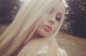 Valeria Lukyanova : La Barbie humaine violemment agressée, son visage tuméfié