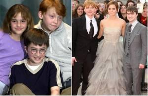 Harry, Ron, Hermione... Les stars d'Harry Potter ont bien changé !