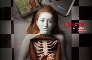Noah Cyrus : Cadavérique, dans un spot choc contre la dissection