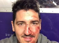 Jonathan Knight (New Kids on the Block) : Le visage tuméfié et le nez cassé !
