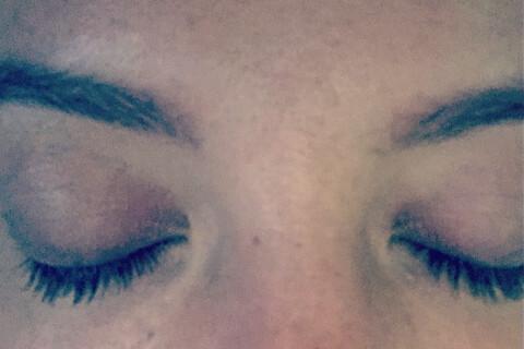 Lily Allen : Victime de brûlures après une explosion au gaz