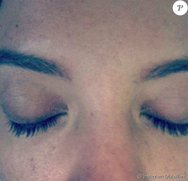 Lily Allen souffre de brûlures au visage, suite à une explosion au gaz à Glastonbury en Angleterre, le samedi 20 juin 2015.