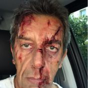 Michel Cymès : En sang sur Twitter... Nagui responsable ?