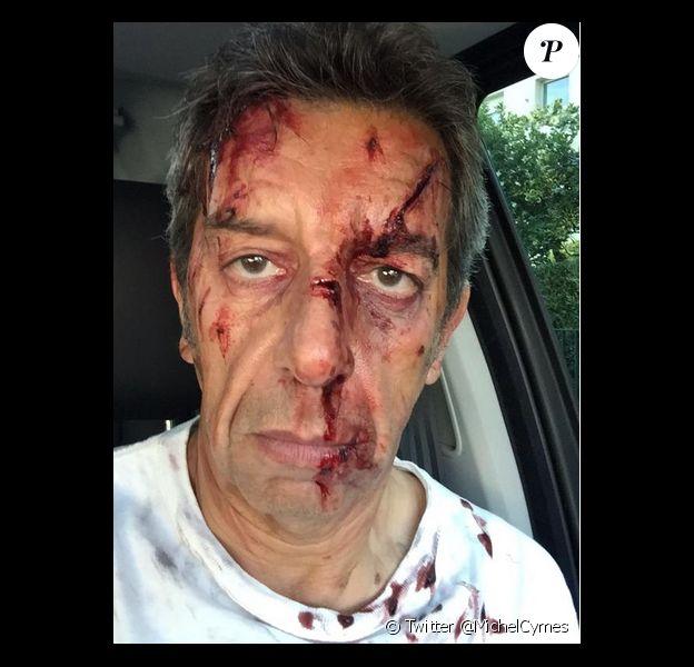 Michel Cymès apparait le visage en sang sur Twitter, le 25 juin 2015.