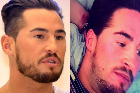 Rémi (Secret Story 9) : Blessures, enfermement... les moments difficiles !