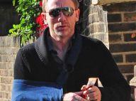 REPORTAGE PHOTOS : Daniel Craig, encore salement... amoché !