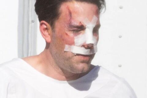 Ben Affleck, amoché et le nez cassé, dévoile son imposant (et vrai) tatouage
