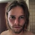 Birkir Bjarnason, l'Islandais beau gosse qui fait de l'ombre à Antoine Griezmann