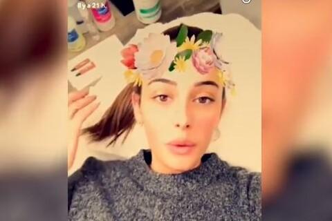 Coralie Porrovecchio s'offre de nouvelles lèvres : Le résultat dévoilé !