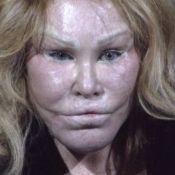 Jocelyn Wildenstein : La femme chat, veuve de milliardaire, est ruinée !