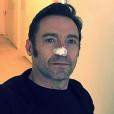 Hugh Jackman après une nouvelle opération visant à retirer un carcinome basocellulaire - Photo publiée le 13 février 2017