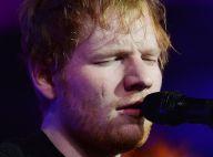 Ed Sheeran : D'où vient sa cicatrice sur le visage ?