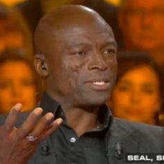 """Seal évoque ses cicatrices au visage avec Thierry Ardisson sur le plateau de """"Salut les terriens"""", sur C8, le 11 novembre 2017."""