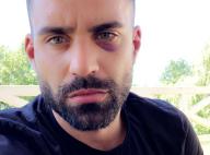 Vincent Queijo blessé après une agression : Il raconte !