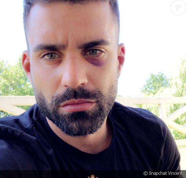 Vincent Queijo blessé - Snapchat, 27 juin 2018