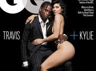Kylie Jenner : Révélation sur sa grosse cicatrice à la jambe