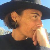 "Alessandra Sublet : Avant/après bluffant de son ""lifting"""