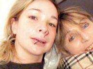 Cindy (Koh-Lanta) le visage défiguré : Nouvelles photos et détails de l'accident