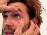 KJ Apa (Riverdale) : En larmes après avoir retiré un bout de métal de son oeil