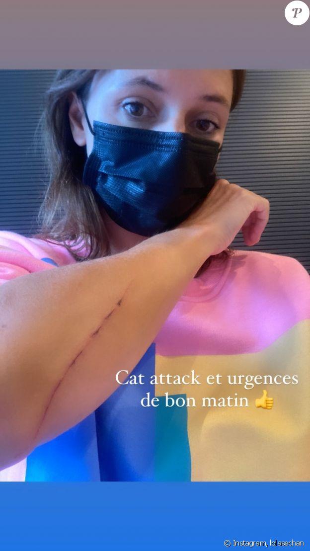 Lolita Séchan raconte sa mésaventure avec son chat Bobby sur Instagram, le 20 juillet 2021.