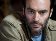 Anthony Delon : Les premiers pas du chirurgien Romain Lucas
