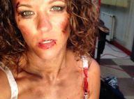 Lorie, défigurée et méconnaissable en femme battue