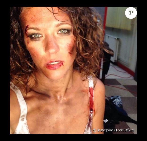 Lorie a posté une photo de son visage défiguré sur son compte Instagram. Le 10 mai 2014.