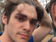 RJ Mitte (Breaking Bad), victime d'un accident : Le beau gosse bien amoché
