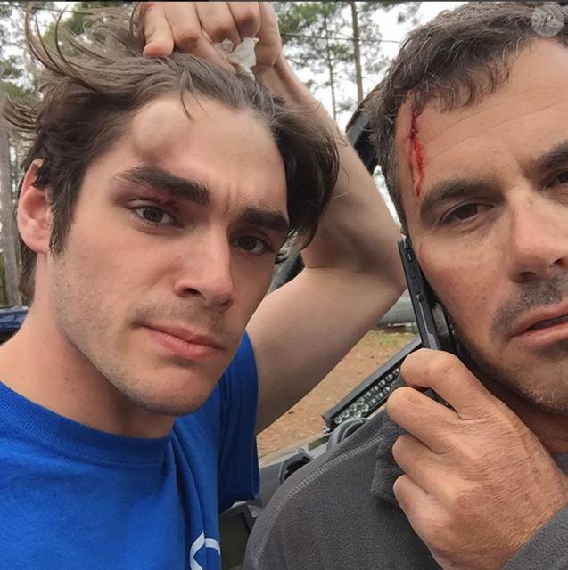 RJ Mitte (Breaking Bad), bien amoché, après un accident de quad lors d'une partie de chasse en Louisiane, novembre 2015.