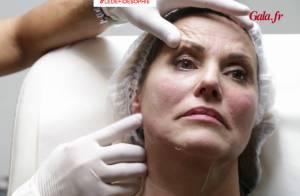 Sophie Favier : Botox et CoolSculpting... sa métamorphose continue !