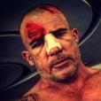 Dominic Purcell blessé après son accident sur le tournage de la 5e saison de Prison Break. Photo publiée sur Instagram, au début du mois de juin 2016