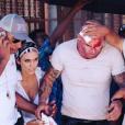 Dominic Purcell a été victime d'un grave accident de plateau sur le tournage de la série Prison Break. Sa petite amie AnnaLynne McCord était à ses côtés. Photo publiée sur Instagram au début du mois de juin 2016