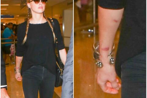 Amber Heard : Après la fuite de sa vidéo, elle dévoile un bras couvert de bleus...