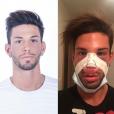 Sacha Buyse (Secret Story 8) : Victime d'oedèmes post-op après une rhinoplastie, il déprime !