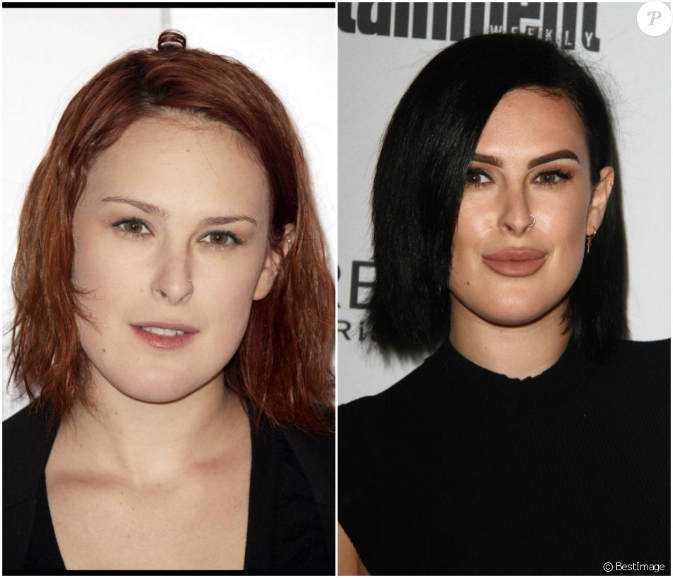 rumer willis les l vres gonfl es elle a c d l 39 appel des injections purepeople. Black Bedroom Furniture Sets. Home Design Ideas