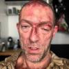 Vincent Cassel bien amoché : Il dévoile son visage tuméfié et décharné
