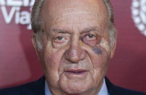 Juan Carlos Ier : L'oeil au beurre noir mais ravi avec Elena et ses enfants