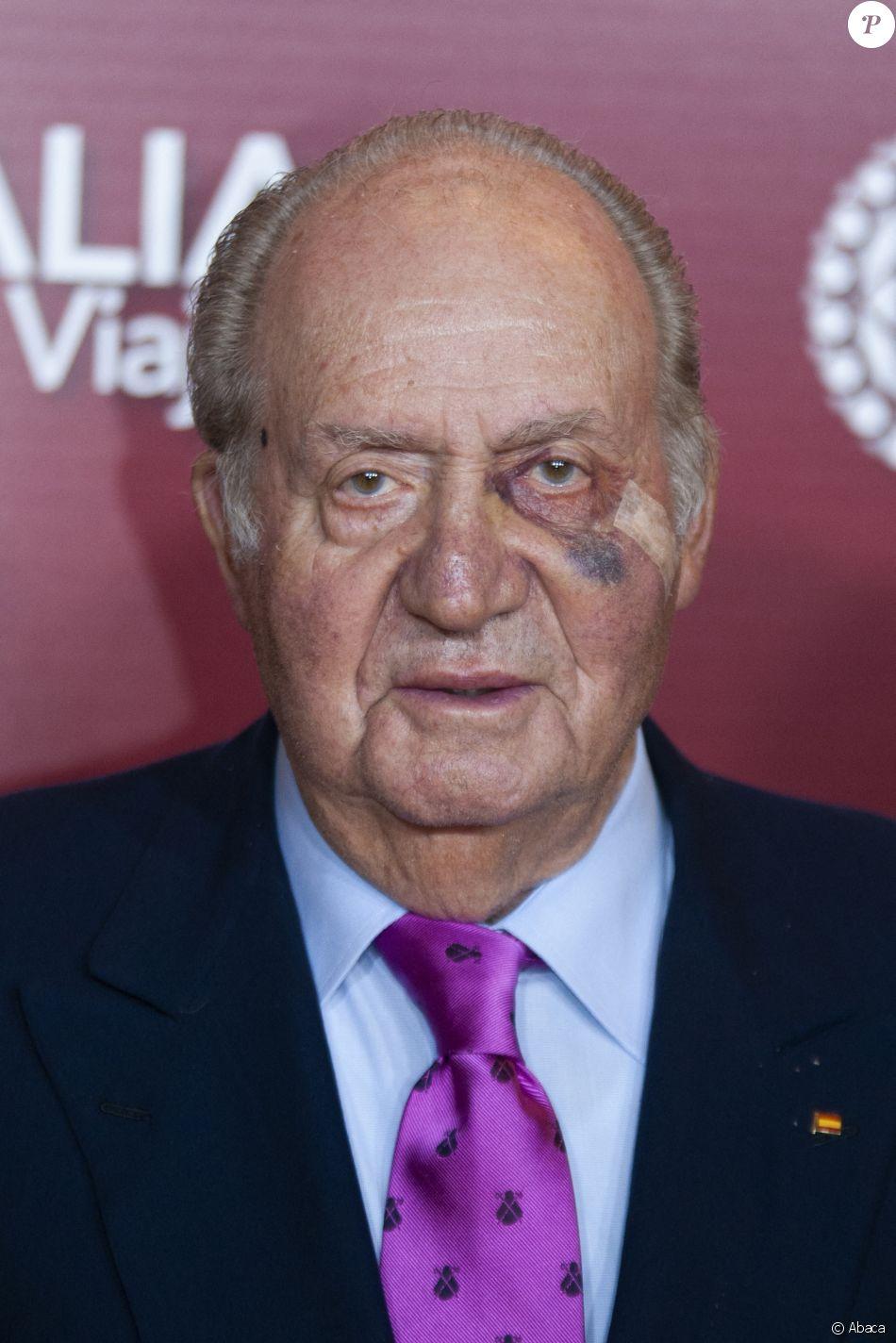 Le roi Juan Carlos Ier d'Espagne, marqué au visage en raison d'une récente intervention chirurgicale, assistait le 22 mars 2019 au gala de présentation de la prochaine Feria de San Isidro, aux arènes de Las Ventas à Madrid.
