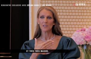 Céline Dion et ses problèmes de dents :