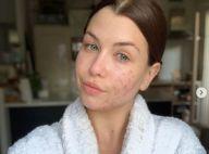 """EnjoyPhoenix : Selfie 100% naturel pour dévoiler son acné, """"de pire en pire"""""""
