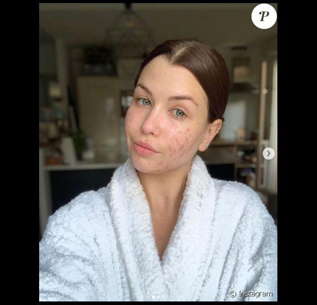 EnjoyPhoenix, youtubeuse souffrant d'acné hormonale, se dévoile entièrement au naturel sur Instagram, le 12 mai 2019.