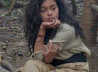 Nilusi (Je suis une célébrité...) : Sa blessure choc causée par des termites