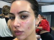 Kim Kardashian, malade : elle dévoile les ravages du psoriasis