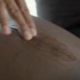 Kevin Hart sur Instagram. Cicatrice après son accident.