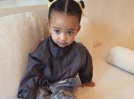 """Kim Kardashian, sa fille Chicago chute : """"Cicatrice sur le visage et sutures..."""""""