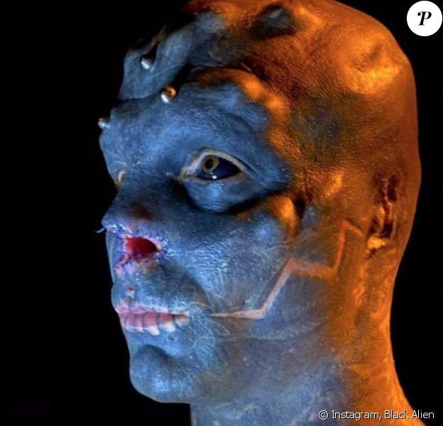 Le Black Alien, de son vrai nom Anthony Loffredo, montre son nouveau visage après s'être fait retirer le nez.