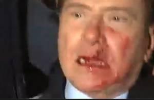 Regardez Silvio Berlusconi : Deux dents et le nez cassés après avoir reçu un coup de statuette !!! (réactualisé)