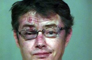 Jason London, passé à tabac : défiguré et le visage marqué après l'opération